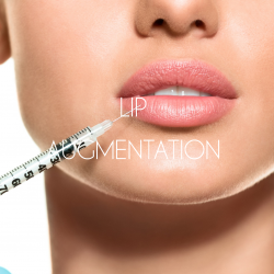 BeYOutifi Lip Fillers